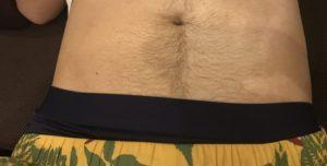 腹毛(ギャランドゥ)の脱毛方法は?剃るのは危険です【処理後の画像も ...